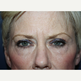 55-64 year old woman treated with Eyelid Surgery before 3094011