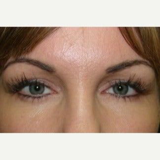 35-44 year old woman treated with Ptosis Surgery after 2124374