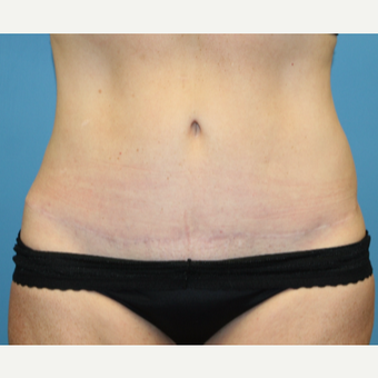 54 year old woman treated with Tummy Tuck after 3582374