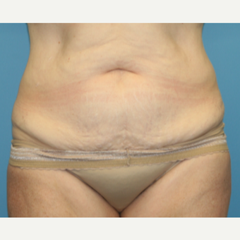 54 year old woman treated with Tummy Tuck before 3582374
