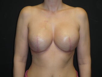 Implant-based breast reconstruction after 958973