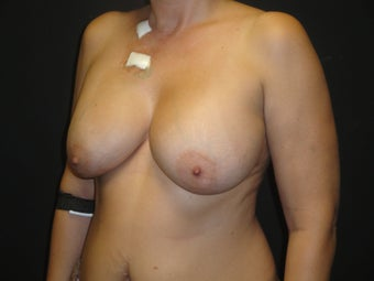 Implant-based breast reconstruction 958973