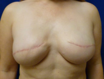 42 Year Old Delayed Breast Reconstruction with Expanders and Alloderm after 1263124