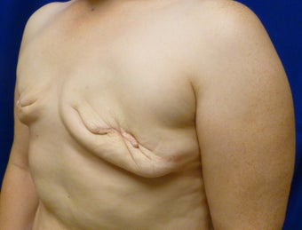 42 Year Old Delayed Breast Reconstruction with Expanders and Alloderm 1263124