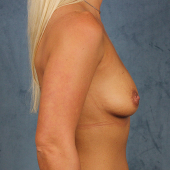 breast augmentation with silicone gel breast implants under the muscle before 3538436