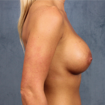 breast augmentation with silicone gel breast implants under the muscle after 3538436
