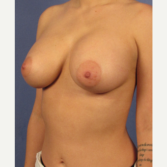 25-34 year old woman treated with Breast Augmentation after 3106723