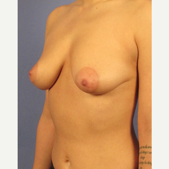 25-34 year old woman treated with Breast Augmentation before 3106723