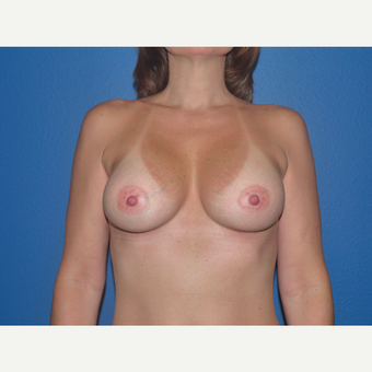 Breast Implants after 3807128