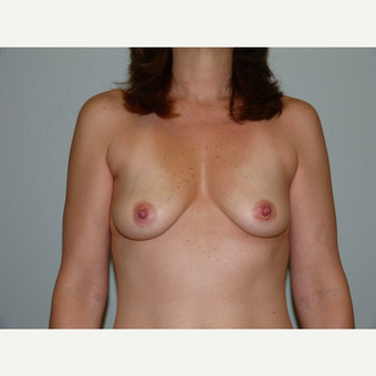 Breast Implants before 3807128