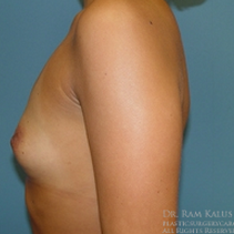 25-34 year old woman treated with Breast Augmentation before 1713686