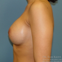 25-34 year old woman treated with Breast Augmentation after 1713686