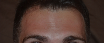 30 Year Old Male Treated For Forehead Lines after 1380335
