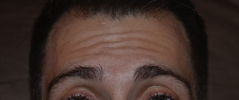 30 Year Old Male Treated For Forehead Lines before 1380335