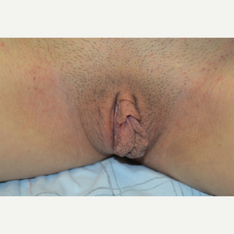 18-24 year old woman treated with Labiaplasty before 3181868