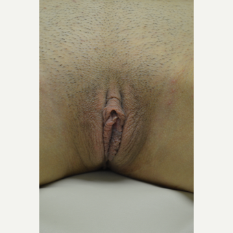 18-24 year old woman treated with Labiaplasty after 3181868