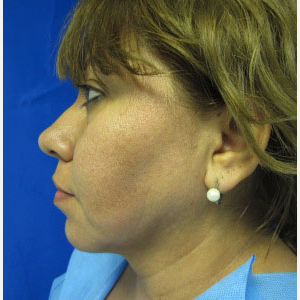 Chin Implant before 3164309