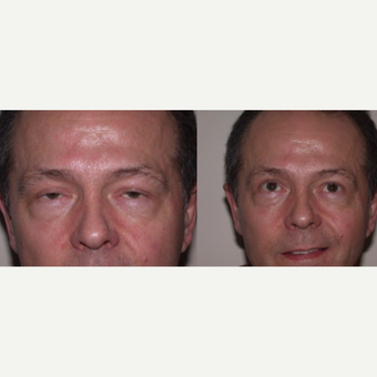55-64 year old man treated with Eyelid Surgery before 3602468