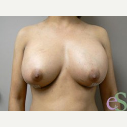 Breast Implant Revision after 3373494