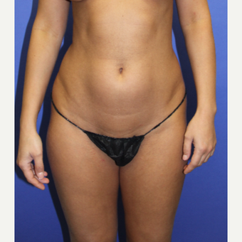 25-34 year old woman treated with Liposculpture before 3240649