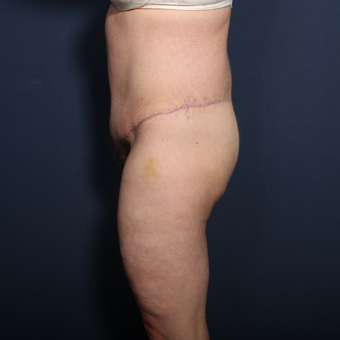 45-54 year old woman treated with Tummy Tuck after 3033290