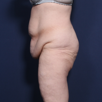 45-54 year old woman treated with Tummy Tuck before 3033290