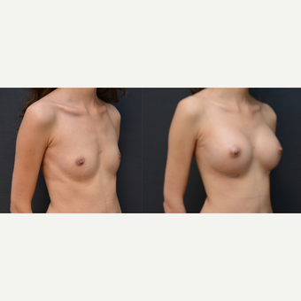 25-34 year old woman treated with Breast Augmentation before 3238775
