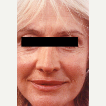 55-64 year old woman treated with Chemical Peel before 3543805