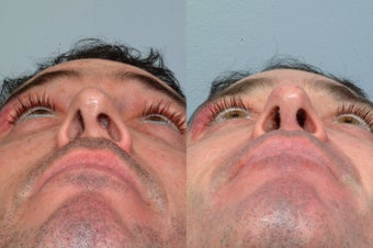 Revision rhinoplasty before 212615