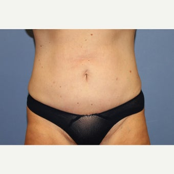54  year old woman treated with Mini Tummy Tuck after 1551751