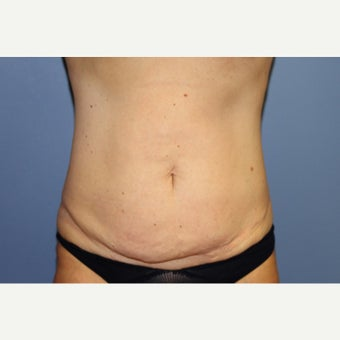 54  year old woman treated with Mini Tummy Tuck before 1551751
