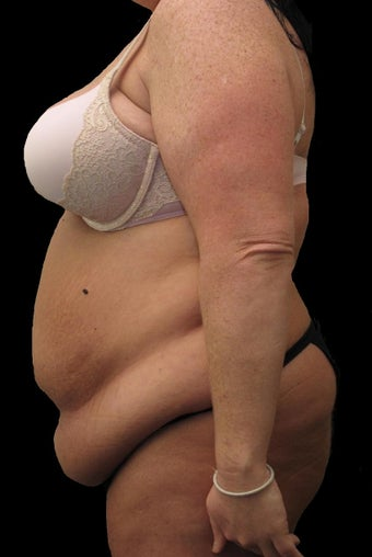 34 year old woman treated with Body Lift 2637453