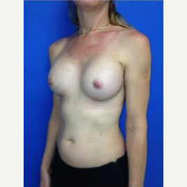 Breast Augmentation after 3744108