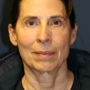 64 year old woman treated with Facelift before 3554088