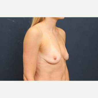 25-34 year old woman treated with Breast Augmentation before 3344141