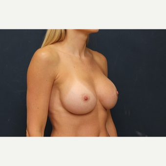 25-34 year old woman treated with Breast Augmentation after 3344141