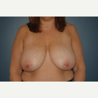 45-54 year old woman treated with Breast Reduction before 1624430