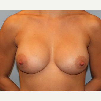 25-34 year old woman treated with Breast Augmentation after 3808406