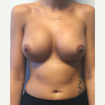 18-24 year old woman treated with Breast Augmentation after 3400568