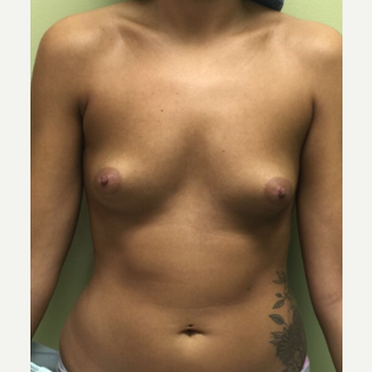18-24 year old woman treated with Breast Augmentation before 3400568