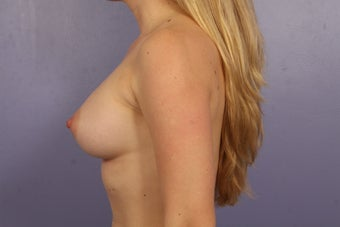 30 yr old wanting Breast Augmentation after 1231479
