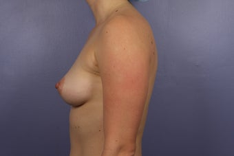 30 yr old wanting Breast Augmentation before 1231479
