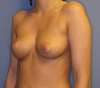 25-34 year old woman treated with Breast Implants 2907322