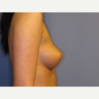 25-34 year old woman treated with Breast Implants before 2907322
