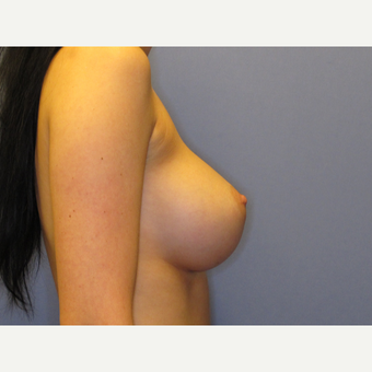 25-34 year old woman treated with Breast Implants after 2907322