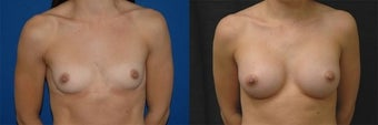 22 year old woman treated with Breast Augmentation before 3004703