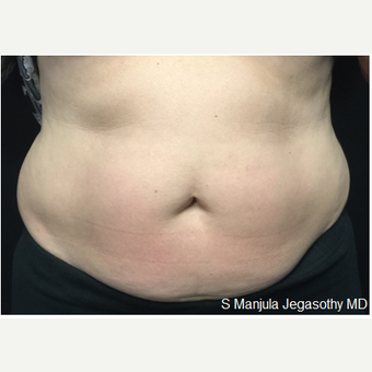 Melt Large Areas of Body Fat with Kybella® after 2341725