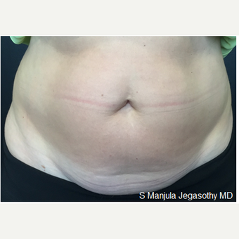 Melt Large Areas of Body Fat with Kybella® before 2341725