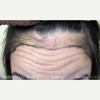 18-24 year old woman treated with Forehead Reduction with Hair Transplant before 1973894