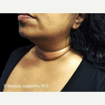 Melt Lower Neck Fat with Kybella® before 2237400